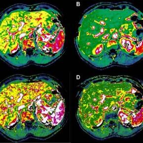 Nuovo metodo per valutare l'attecchimento delle isole pancreatiche dopo trapianto.