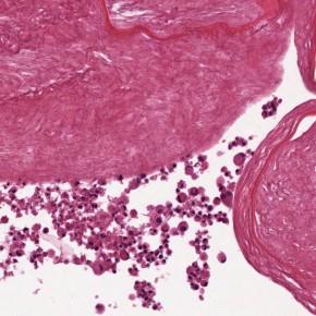 Pancreas bioartificiali di nuova generazione: abbiamo l'hardware