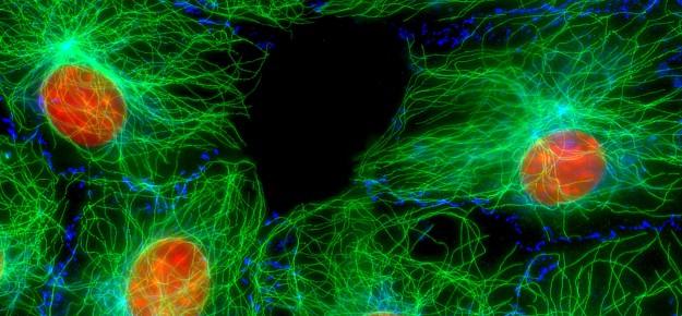 """Da fibroblasti a beta-cellule: una """"conversione"""" quasi diretta"""