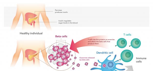 """Un errore di """"imballaggio"""" può causare gli attacchi del sistema immunitario nel diabete di tipo 1"""