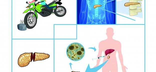 Staffetta Brescia-Milano per salvare la funzione del pancreas di un giovane dopo un incidente in moto