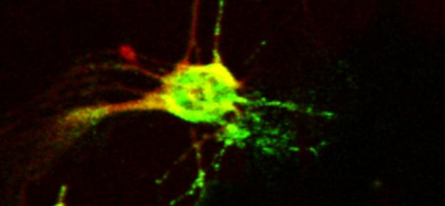 Nuove evidenze del ruolo dei neutrofili nella patogenesi del diabete di tipo 1