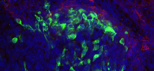 Staminali e isole pancreatiche: gemelli diversi?