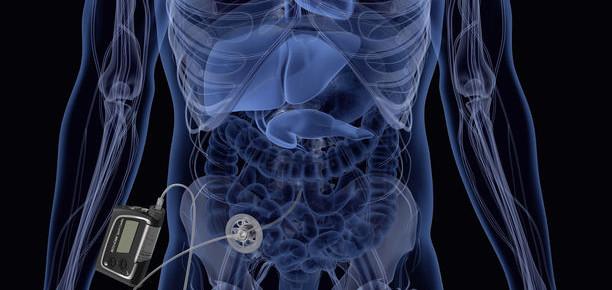 Somministrazione intraperitoneale dell'insulina: l'Ospedale San Raffaele è centro di riferimento