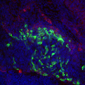 Cellule staminali pluripotenti per trattare il diabete di tipo 1: primo studio nell' uomo in Europa