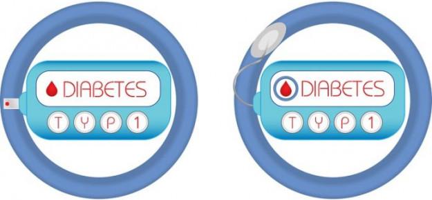 """Quanti """"diabete di tipo 1"""" esistono? Facciamo un po' di chiarezza"""