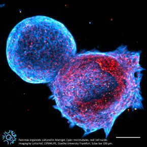 La sfida di sviluppare organoidi pancreatici umani per l'utilizzo in clinica.