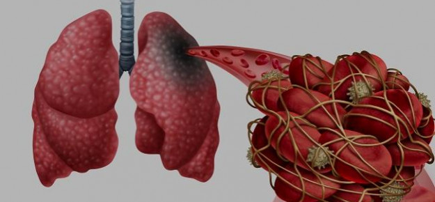 Complicanze tromboemboliche tra le cause della prognosi peggiore del COVID19 in soggetti con diabete